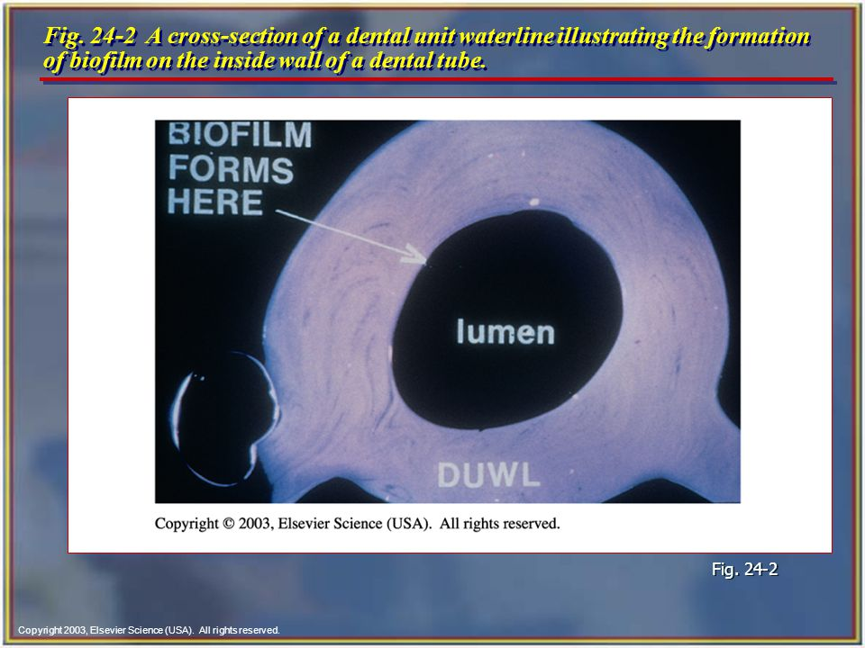 Fig. 24-2 A cross-section of a dental unit waterline illustrating the formation of biofilm on the inside wall of a dental tube.