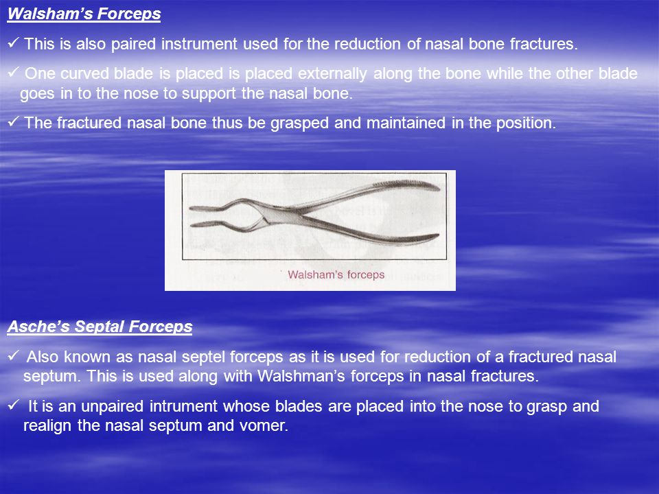 Walsham's Forceps This is also paired instrument used for the reduction of nasal bone fractures.
