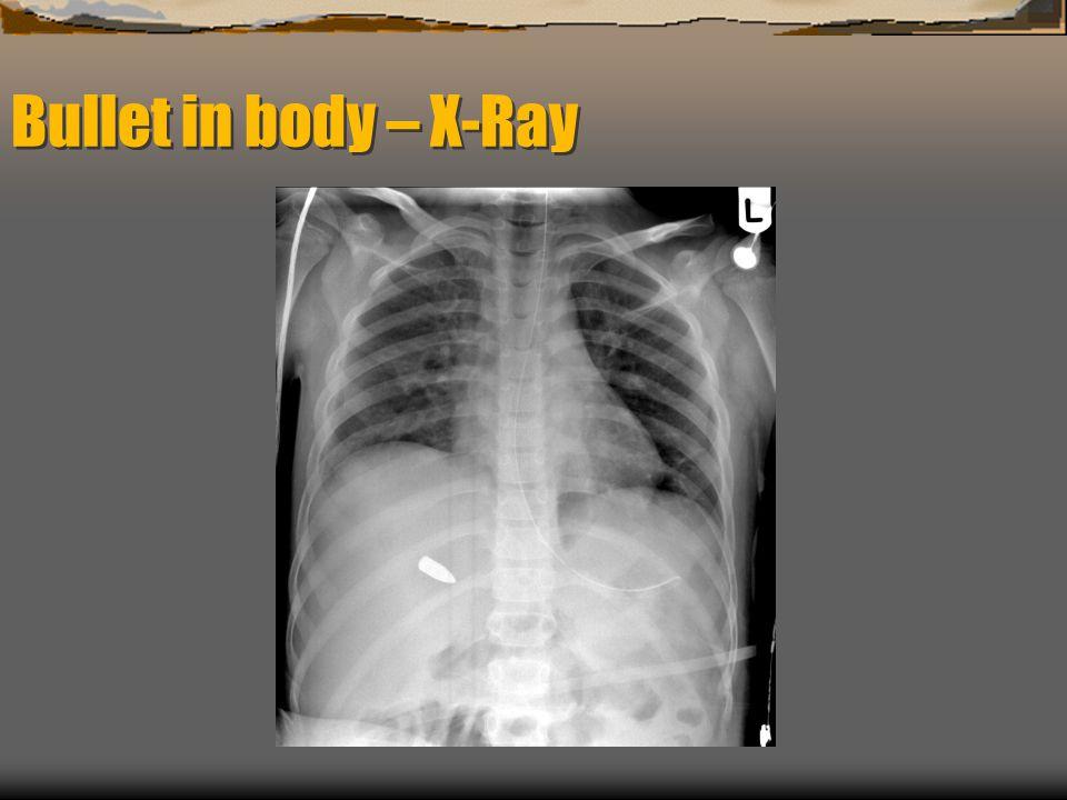 Bullet in body – X-Ray