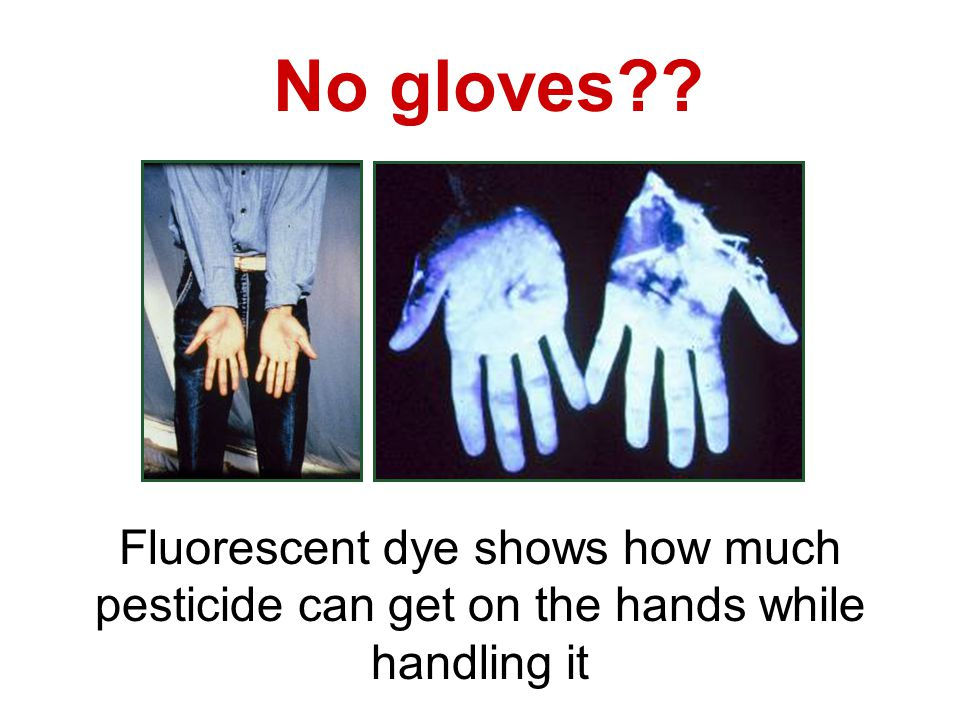 No gloves