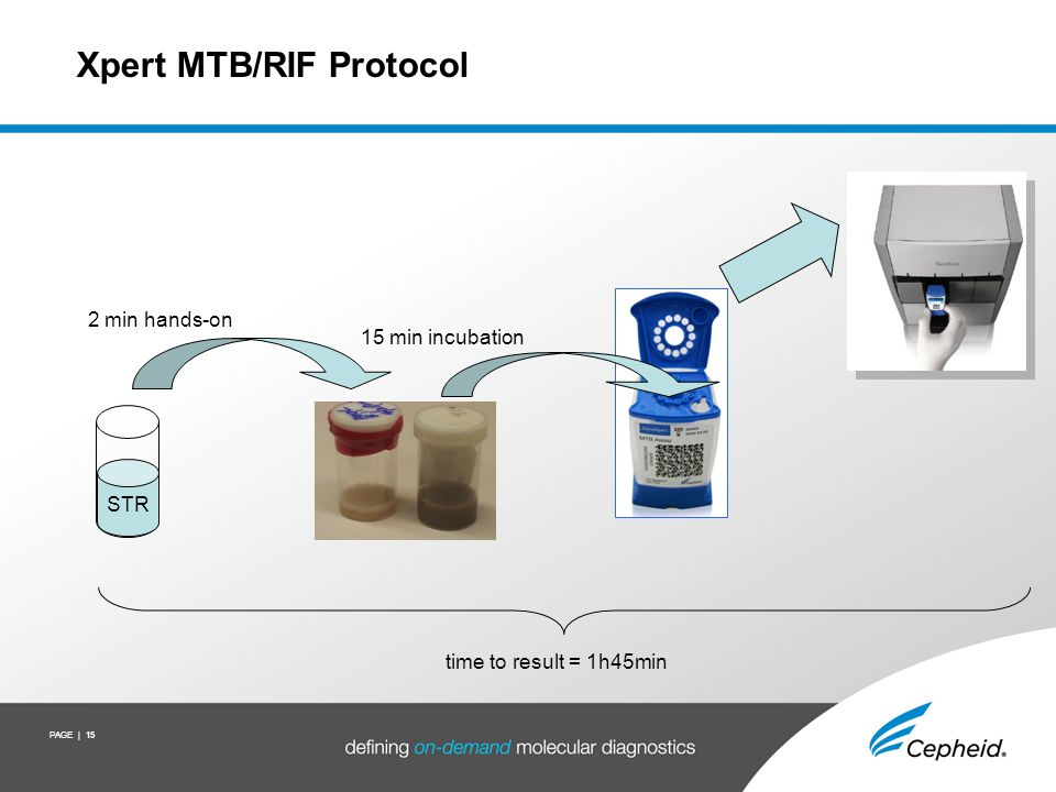 The Xpert MTB/RIF Molecular Beacon Assay