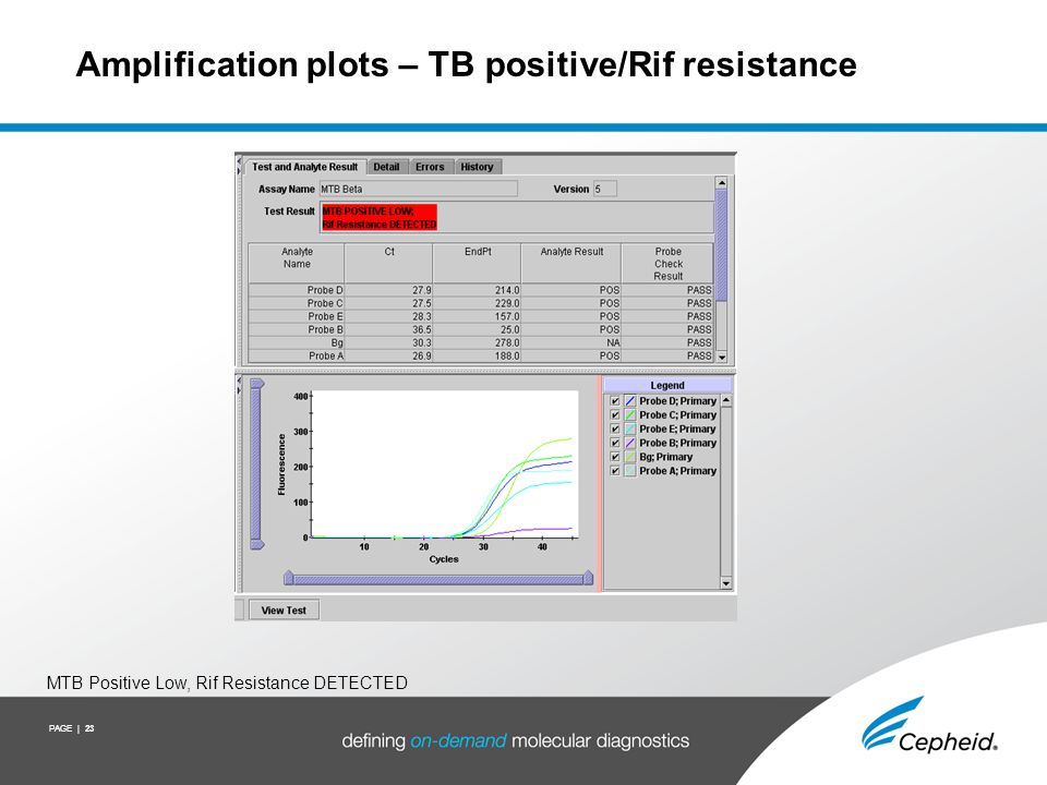 Amplification plot – TB not detected