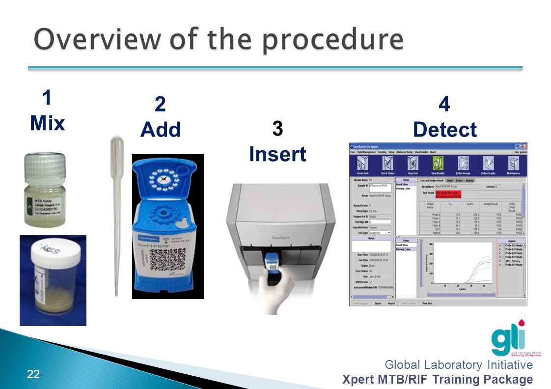 Overview of the procedure