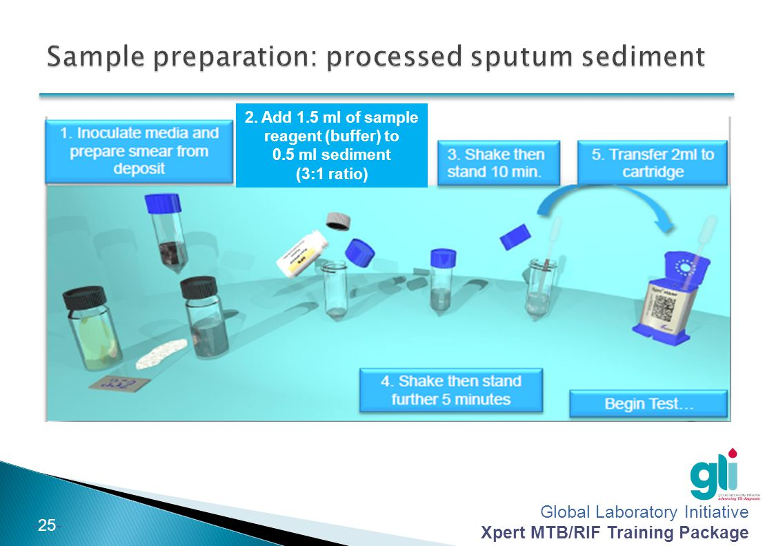 Sample preparation: processed sputum sediment