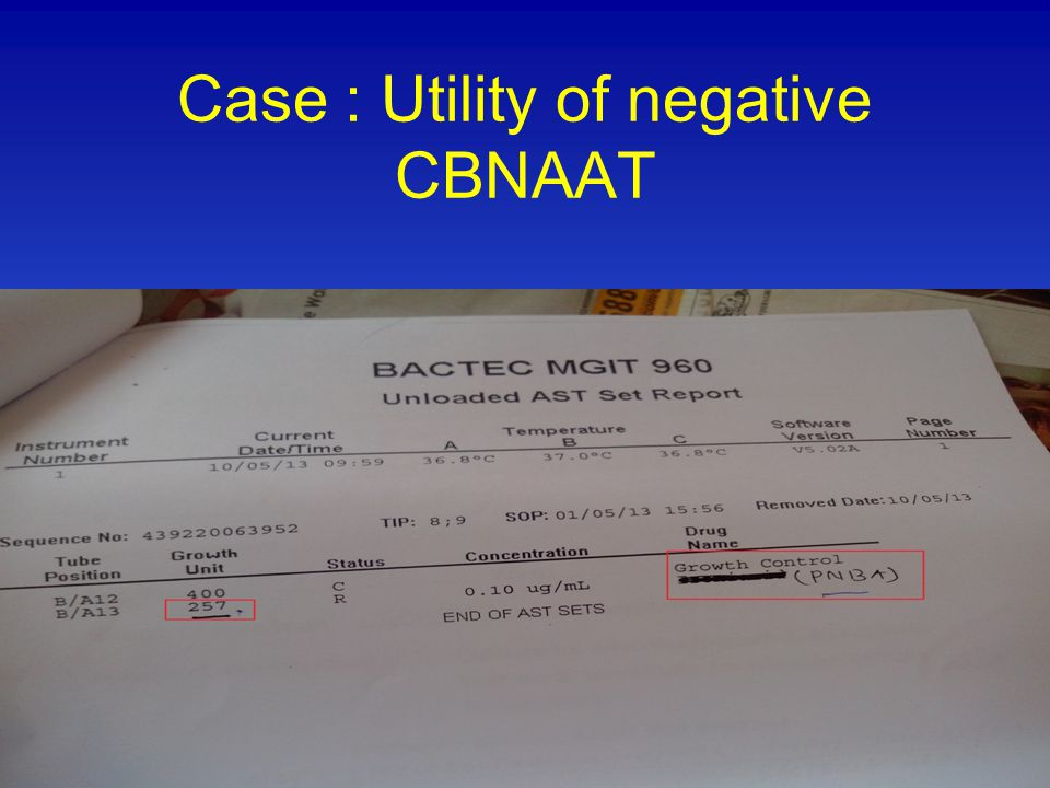 Case : Utility of negative CBNAAT