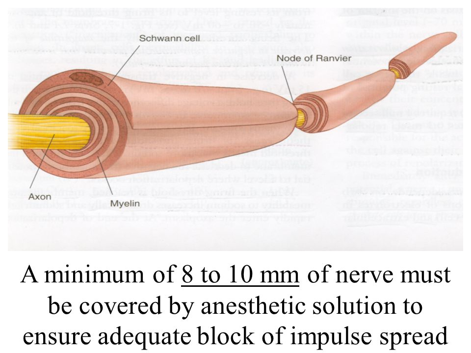 A minimum of 8 to 10 mm of nerve must be covered by anesthetic solution to ensure adequate block of impulse spread