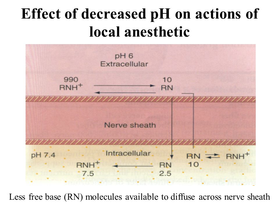Effect of decreased pH on actions of local anesthetic