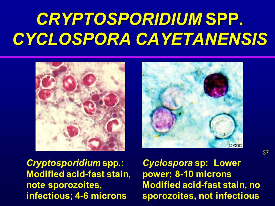CRYPTOSPORIDIUM SPP. CYCLOSPORA CAYETANENSIS