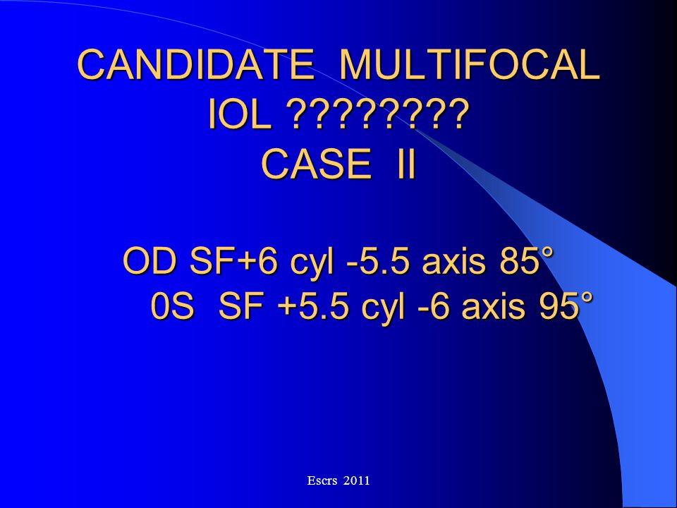 CANDIDATE MULTIFOCAL IOL. CASE. II OD SF+6 cyl -5. 5 axis 85°. 0S