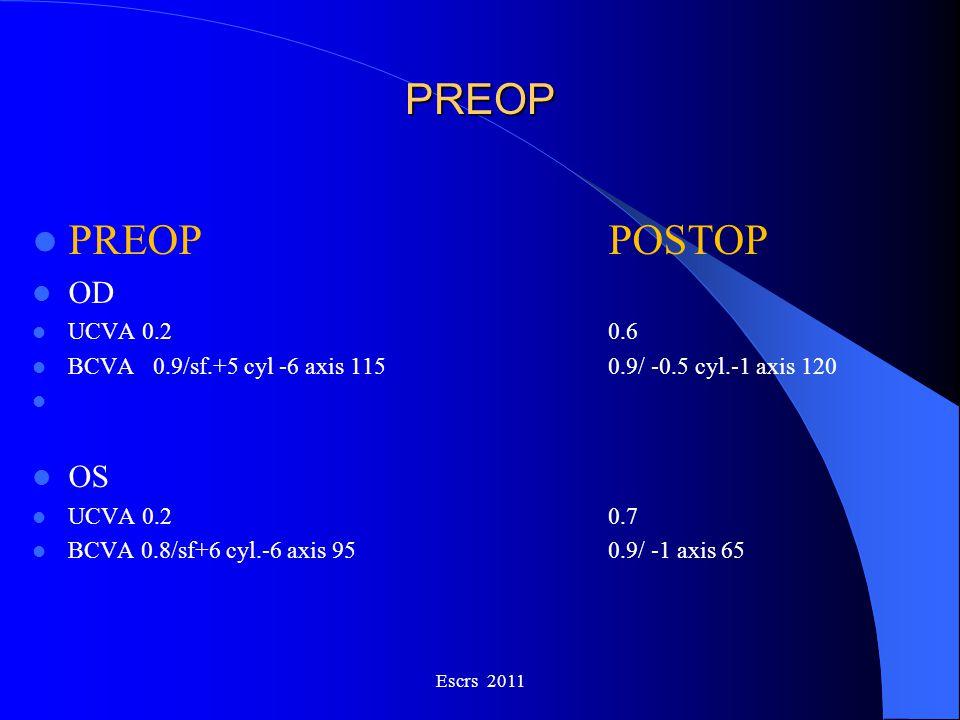 PREOP PREOP POSTOP OD OS UCVA 0.2 0.6