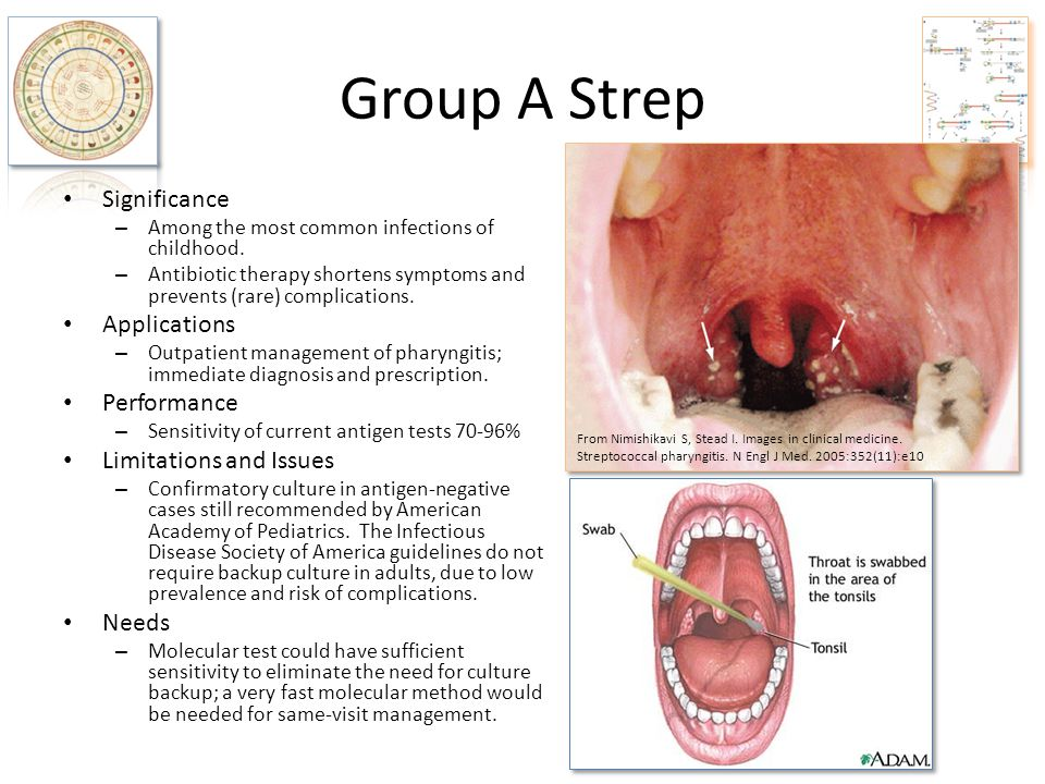 Group A Strep Significance Applications Performance
