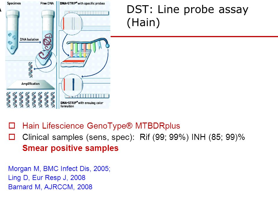 DST: Line probe assay (Hain)