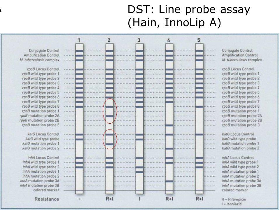 DST: Line probe assay (Hain, InnoLip A)