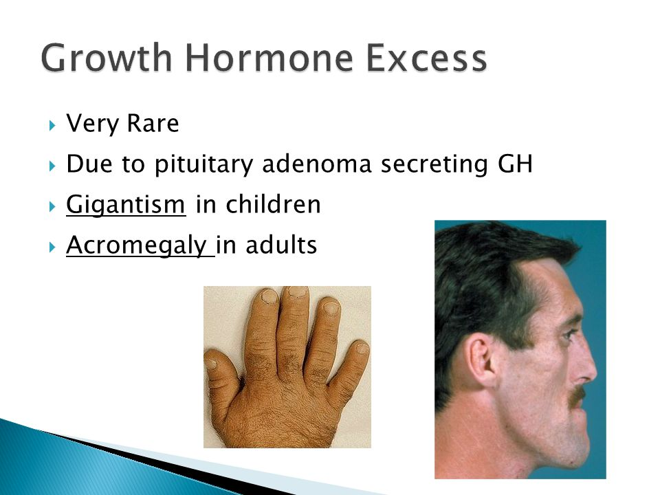 Growth Hormone Excess Very Rare Due to pituitary adenoma secreting GH