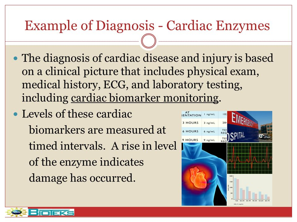 Example of Diagnosis - Cardiac Enzymes