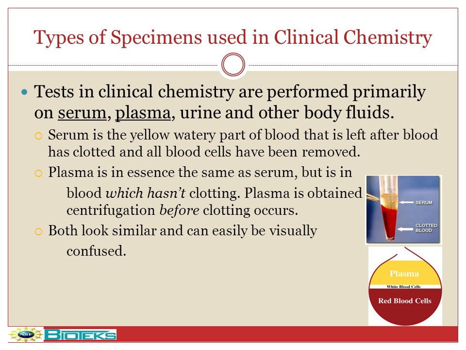 Types of Specimens used in Clinical Chemistry