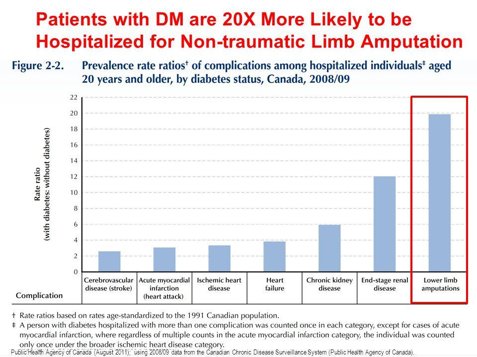 Patients with DM are 20X More Likely to be Hospitalized for Non-traumatic Limb Amputation