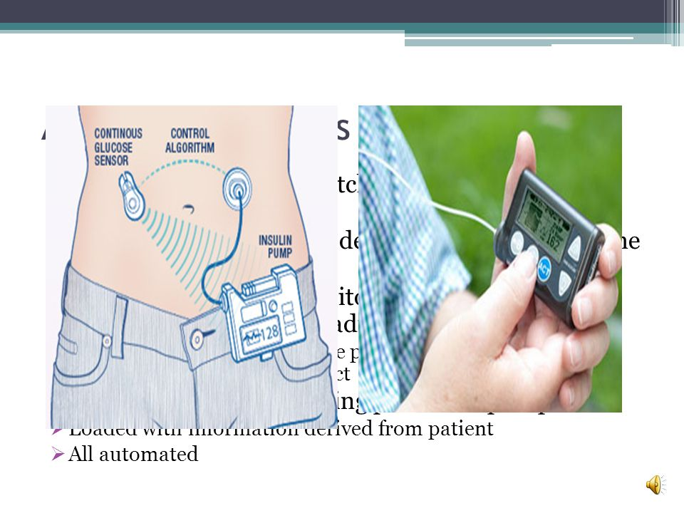 Artificial Pancreas There s an abdominal patch that continuously measures blood sugar. A pager sized pump that delivers insulin beneath the skin.