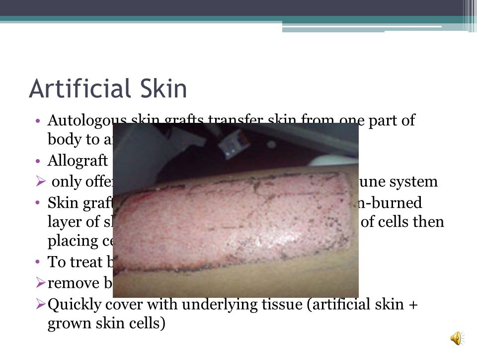 Artificial Skin Autologous skin grafts transfer skin from one part of body to another. Allograft transfers skin from another person.