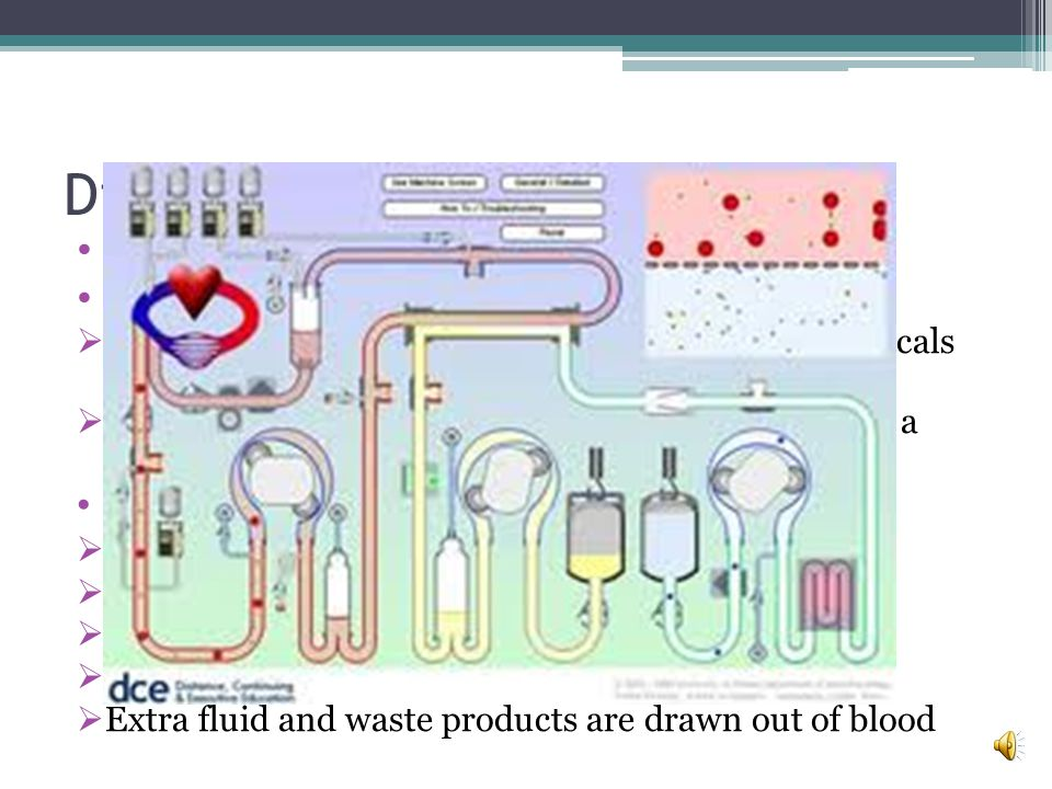 Dialysis 2 types: Hemodialysis + peritoneal dialysis Hemodialysis: