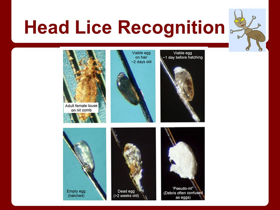 Head Lice Recognition