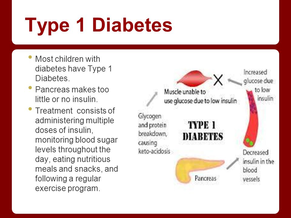 Type 1 Diabetes Most children with diabetes have Type 1 Diabetes.