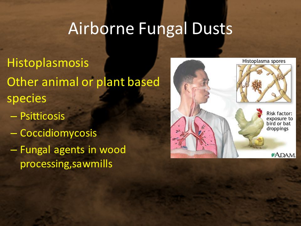 Airborne Fungal Dusts Histoplasmosis