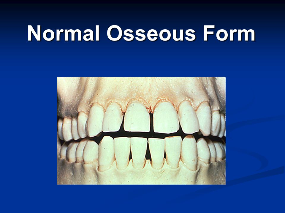 Normal Osseous Form