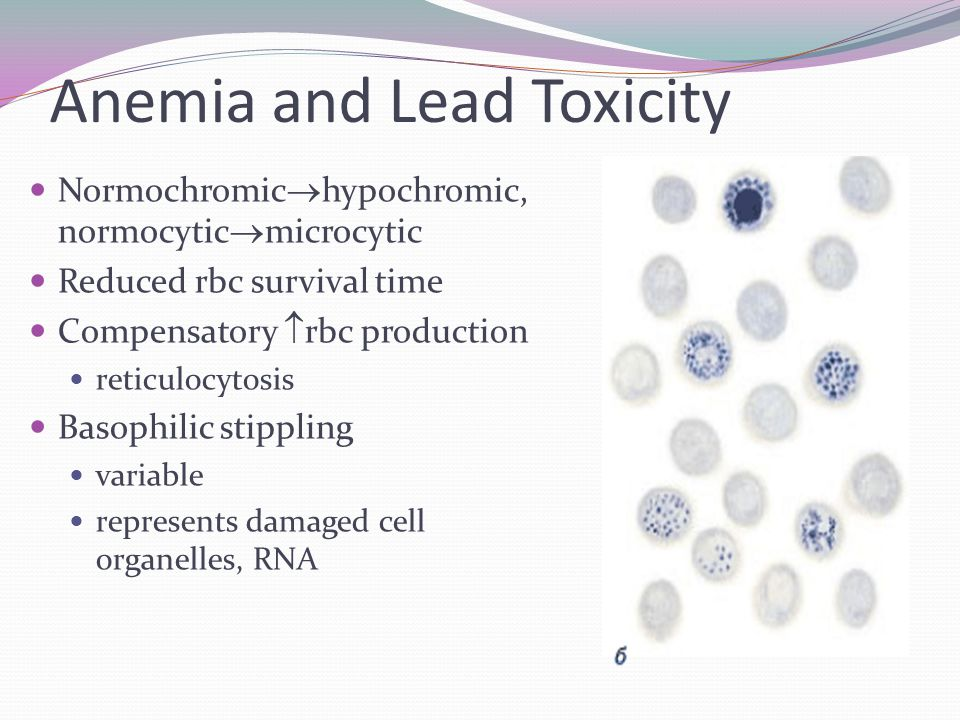 Anemia and Lead Toxicity