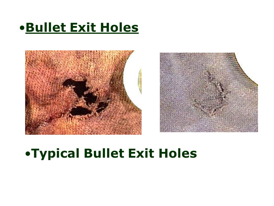 Typical Bullet Exit Holes
