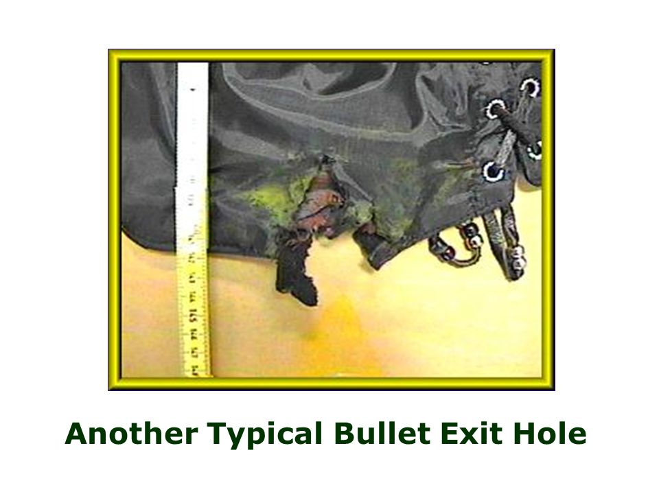 Another Typical Bullet Exit Hole