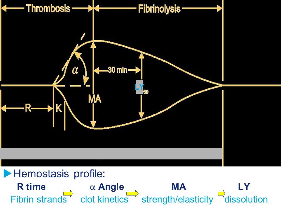 Hemostasis profile: R time  Angle MA LY