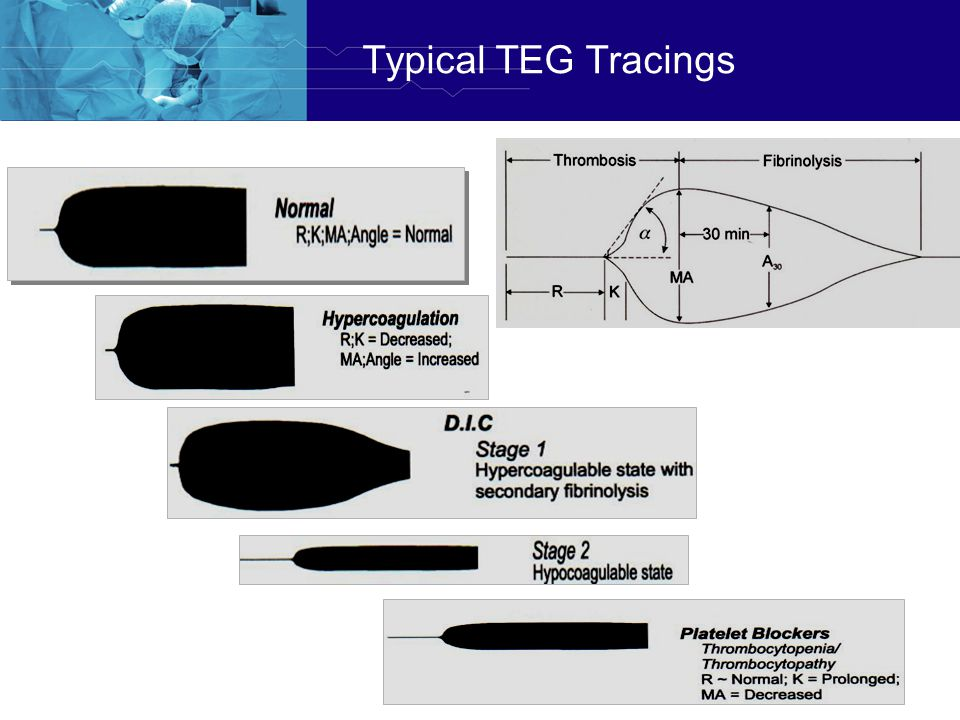 Typical TEG Tracings