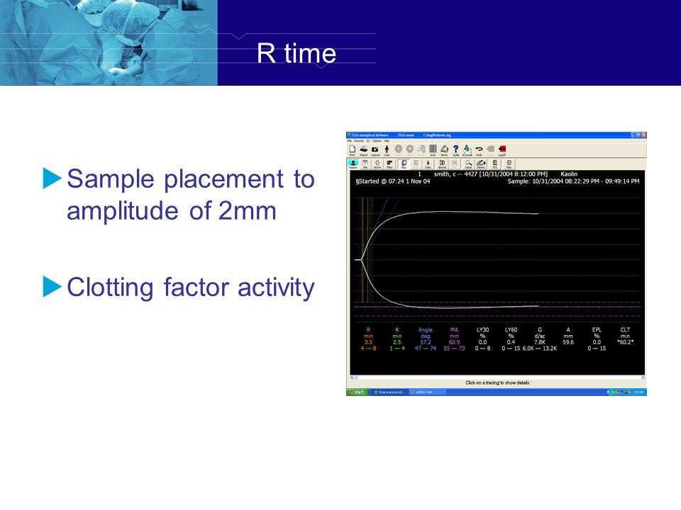 R time Sample placement to amplitude of 2mm Clotting factor activity