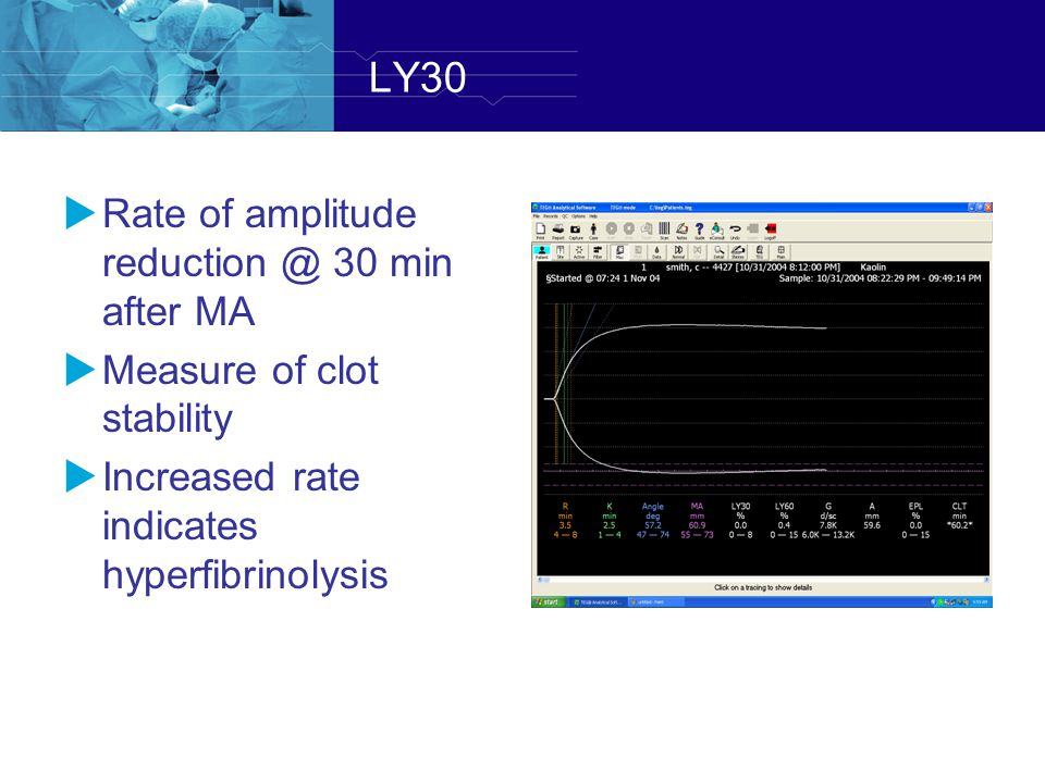 LY30 Rate of amplitude reduction @ 30 min after MA