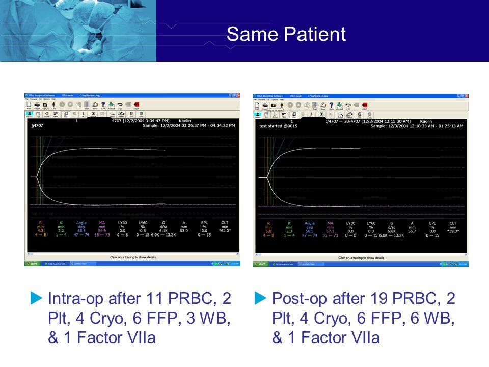 Same Patient Intra-op after 11 PRBC, 2 Plt, 4 Cryo, 6 FFP, 3 WB, & 1 Factor VIIa.