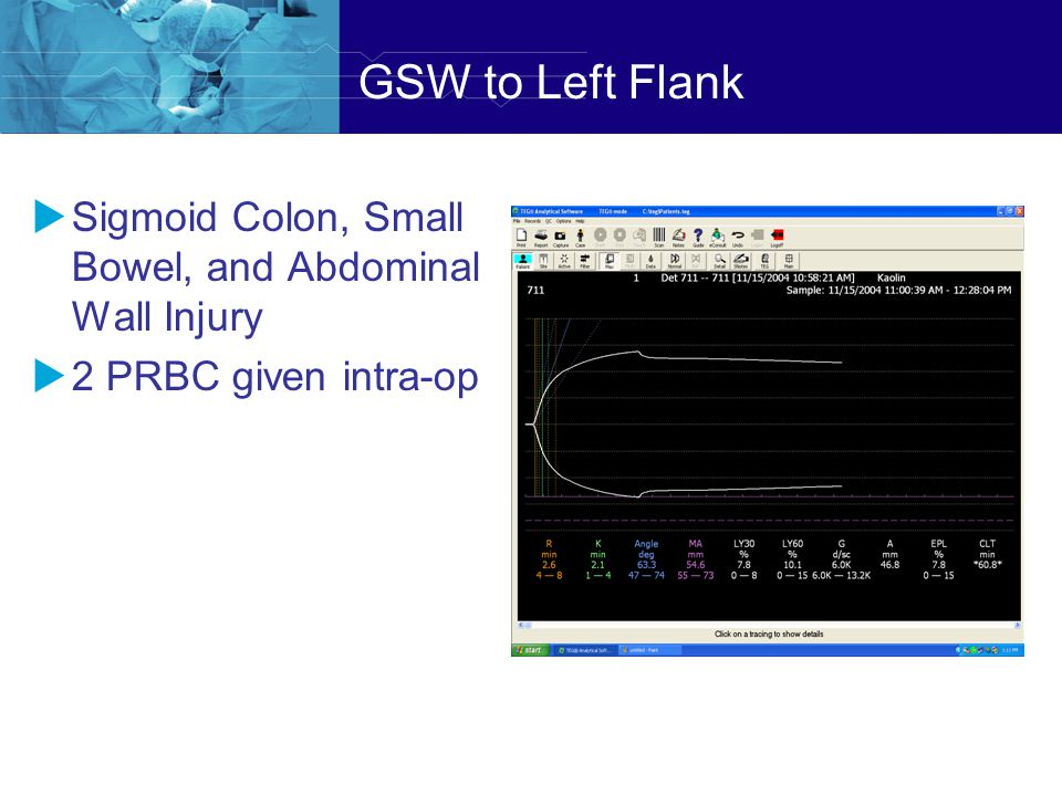GSW to Left Flank Sigmoid Colon, Small Bowel, and Abdominal Wall Injury 2 PRBC given intra-op