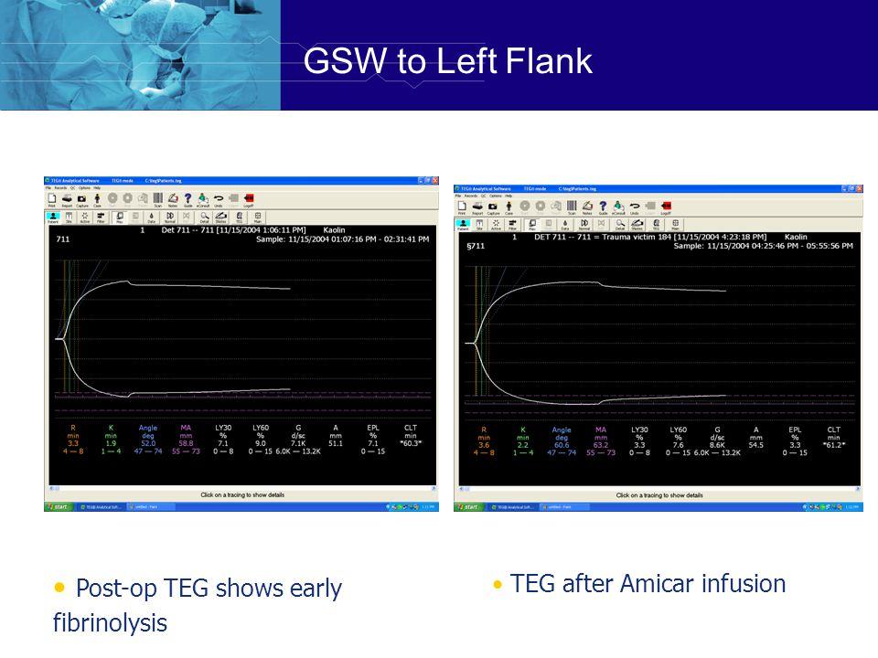 GSW to Left Flank Post-op TEG shows early fibrinolysis