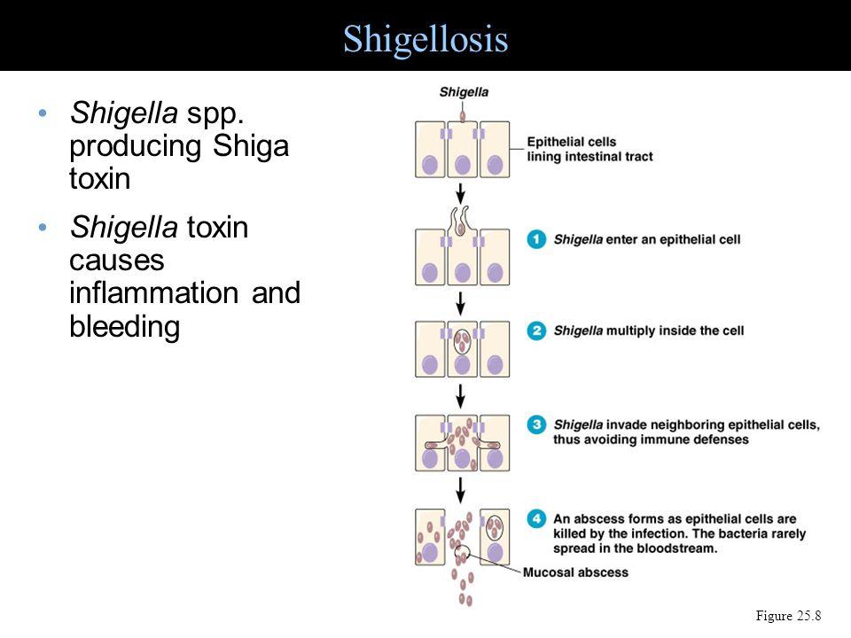 Shigellosis Shigella spp. producing Shiga toxin
