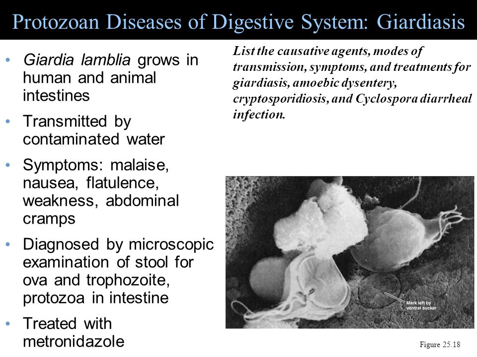 Protozoan Diseases of Digestive System: Giardiasis