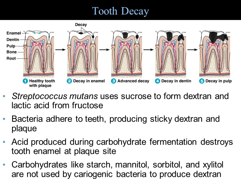 Tooth Decay Streptococcus mutans uses sucrose to form dextran and lactic acid from fructose.