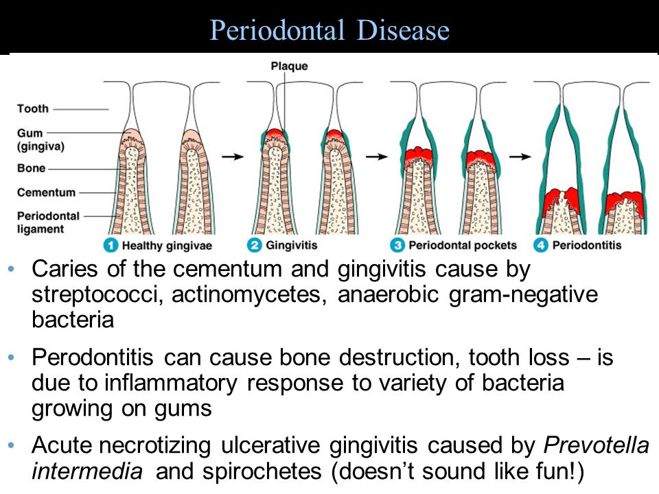 Periodontal Disease Caries of the cementum and gingivitis cause by streptococci, actinomycetes, anaerobic gram-negative bacteria.