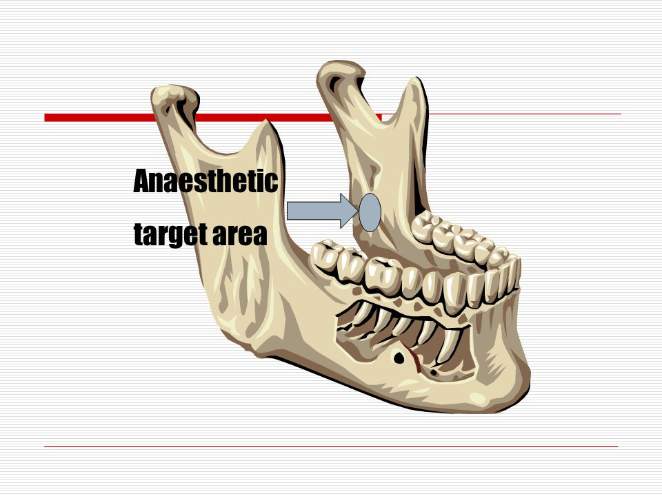 Anaesthetic target area