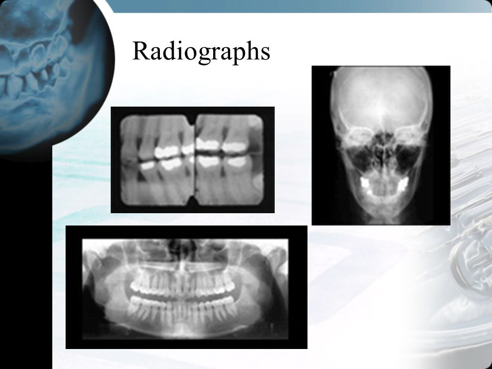 Radiographs Limited availability in the field