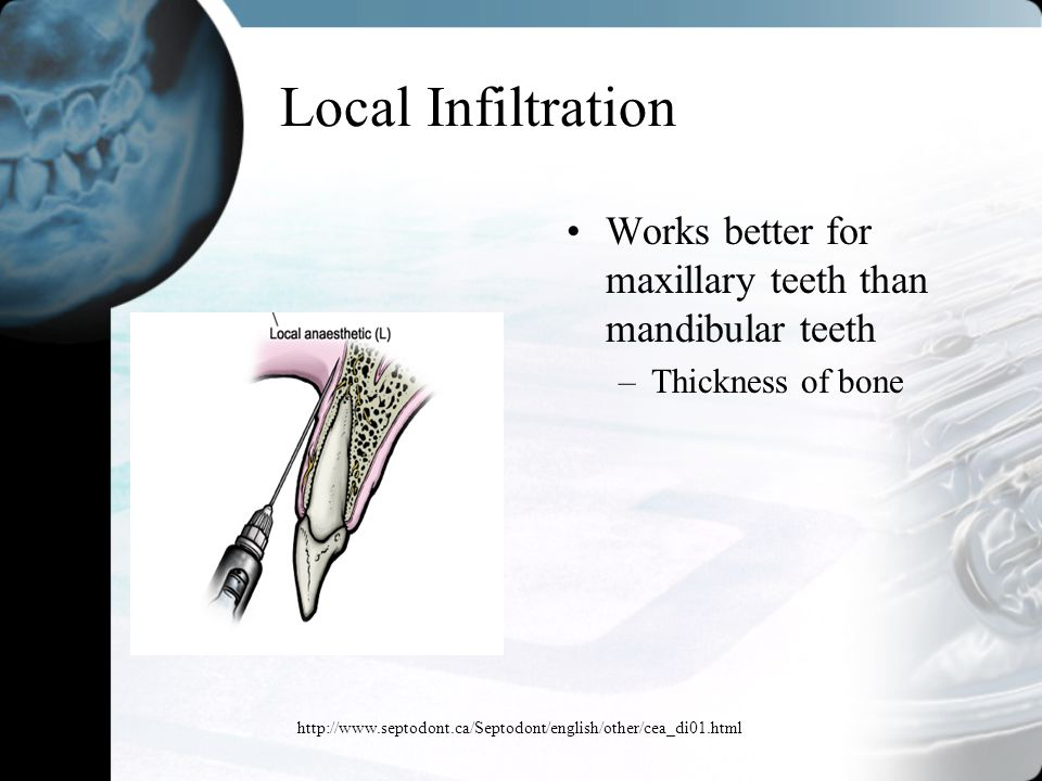 Local Infiltration Works better for maxillary teeth than mandibular teeth. Thickness of bone.