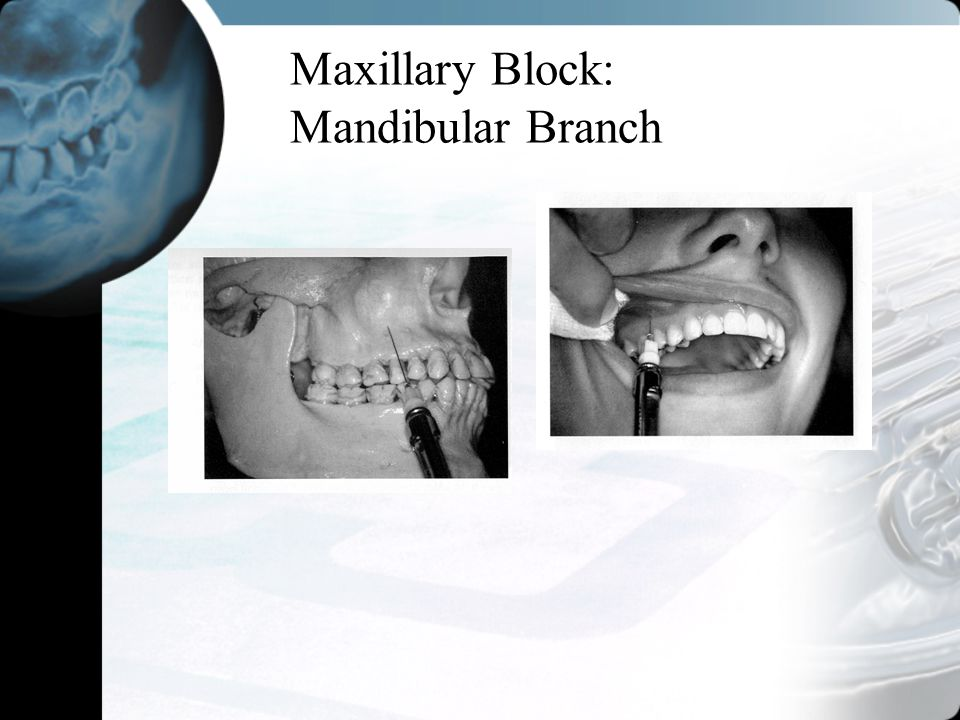 Maxillary Block: Mandibular Branch