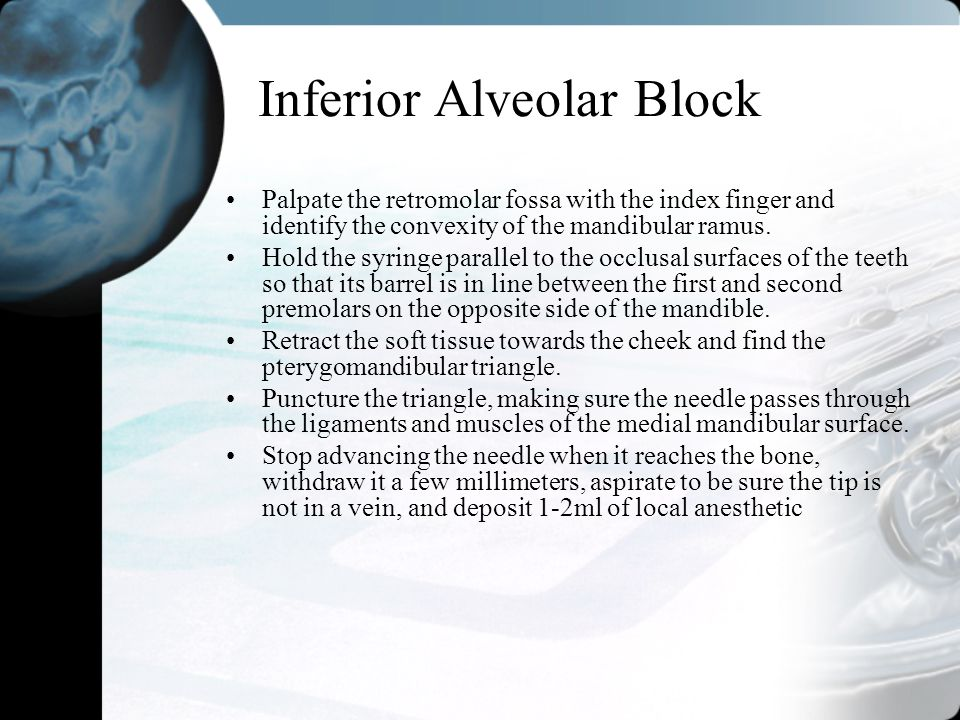 Inferior Alveolar Block