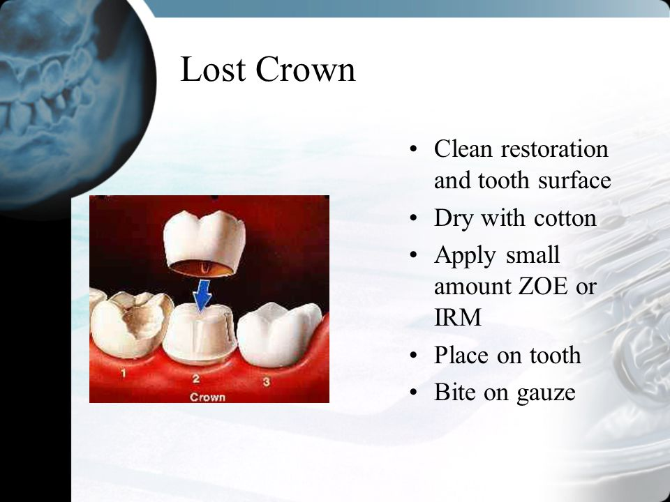 Lost Crown Clean restoration and tooth surface Dry with cotton