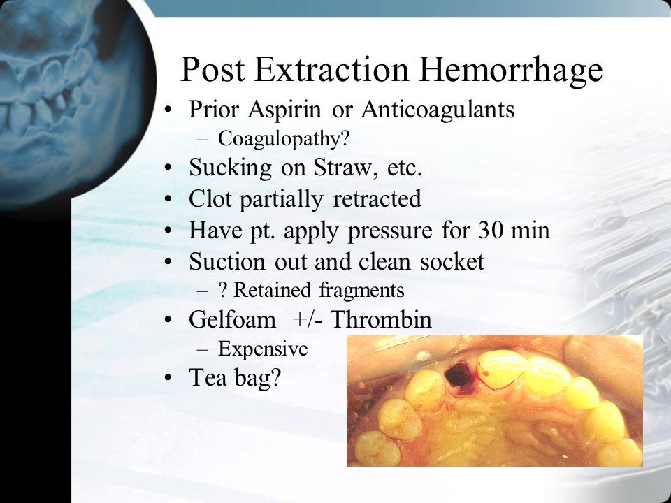 Post Extraction Hemorrhage