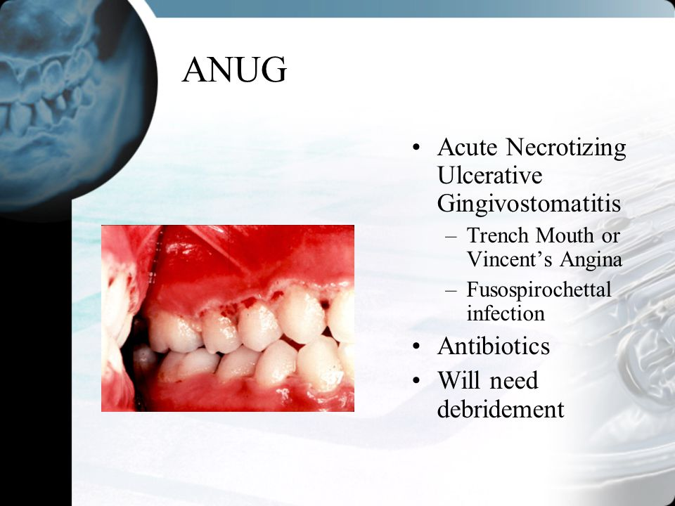 ANUG Acute Necrotizing Ulcerative Gingivostomatitis Antibiotics